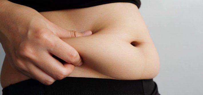 Liposuction-for-obesity